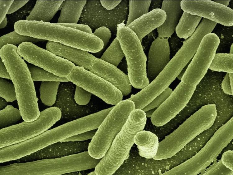 WHO công bố danh sách 12 siêu vi khuẩn đáng lo ngại nhất