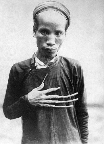 Xem mốt làm đẹp lạ lùng nhất Việt Nam những năm 1920