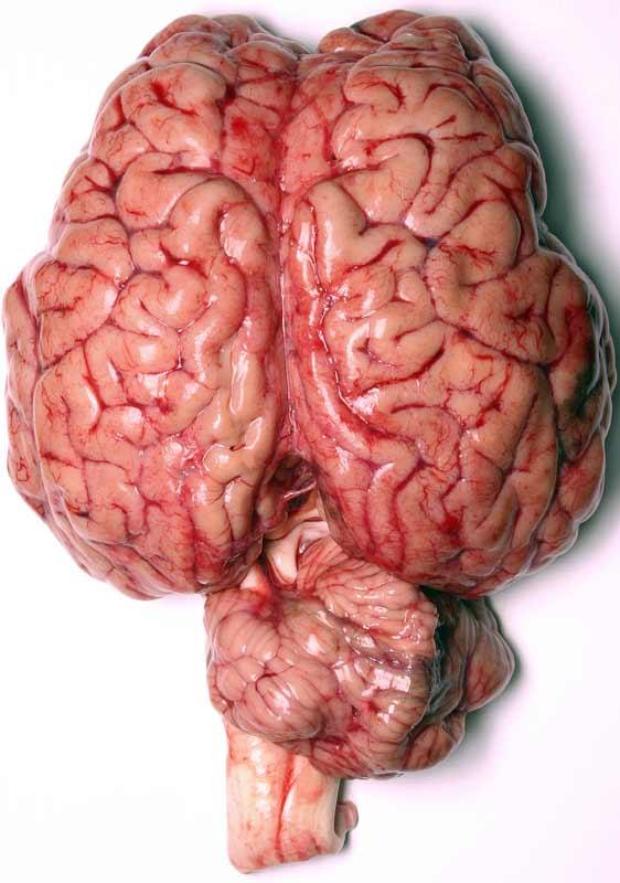5 cách để cải thiện trí óc