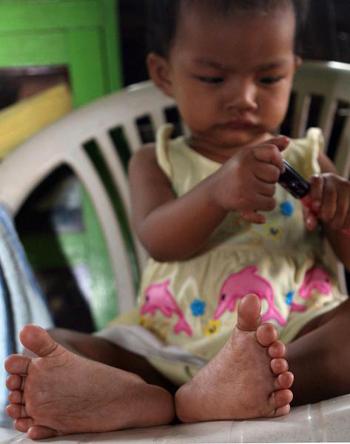 Bé gái có 14 ngón chân