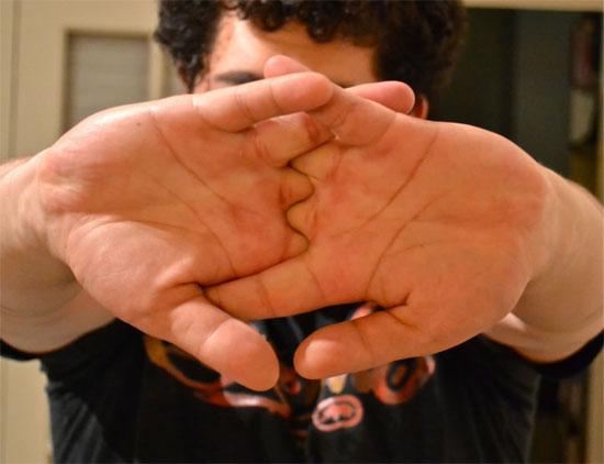 Cắn móng tay, ợ hơi... có lợi cho sức khoẻ