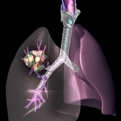 Canada áp dụng công nghệ 3D điều trị ung thư phổi