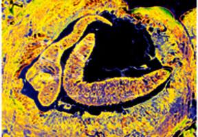 Cảnh giác với bệnh sán lá phổi
