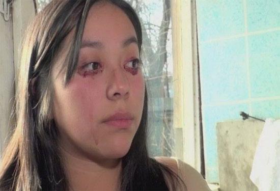 Cô gái mắc bệnh khóc ra... máu