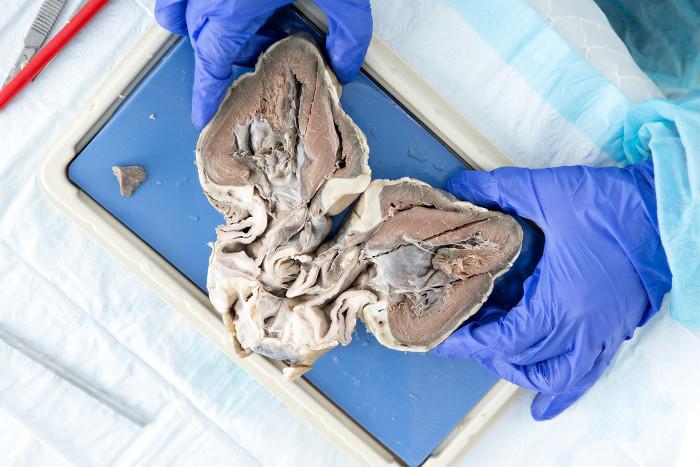 Con người sẽ có thể dùng tim lợn thay cho tim người nhờ kỹ thuật di truyền này