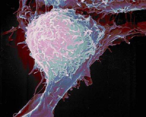Đã có thể phân loại ung thư tuyến tiền liệt