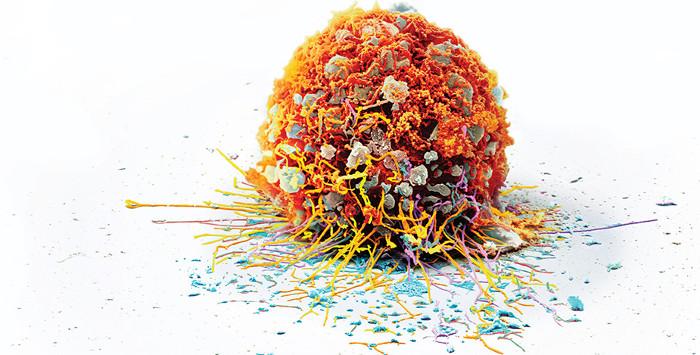 Đột phá mới trong việc điều trị ung thư bằng liệu pháp miễn dịch