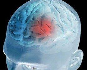 Khôi phục hoạt động của não bằng cách giảm cơn đau