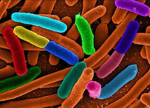 Khuẩn E.coli gây tử vong ở châu Âu là chủng mới, cực độc
