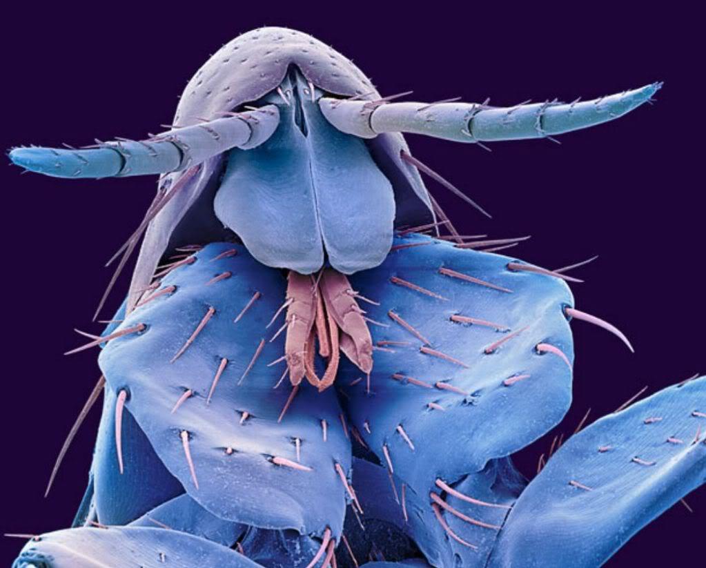 Kinh ngạc với 35 hình ảnh quen thuộc trở nên vô cùng kỳ quái dưới kính hiển vi