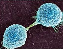 Máy 'ngửi' được ung thư da