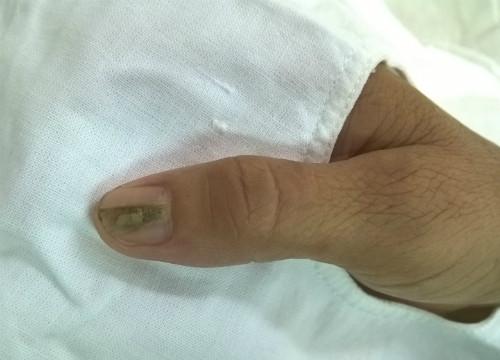 Móng tay có sọc coi chừng u cuộn mạch