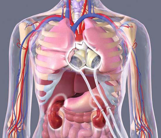 Người đàn ông mang trái tim nhựa