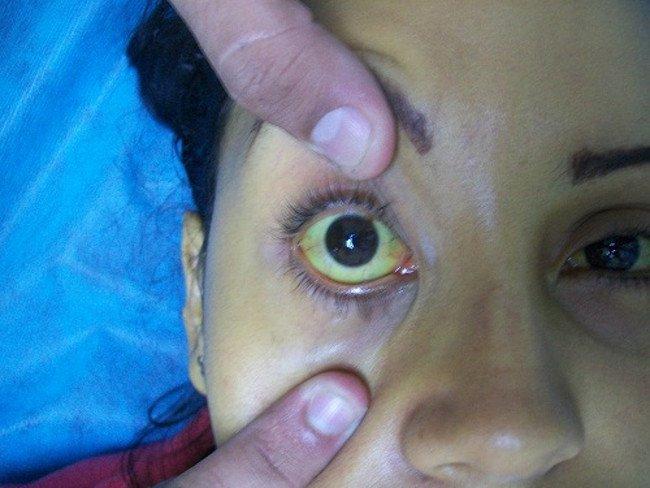 Nhìn mắt đoán bệnh