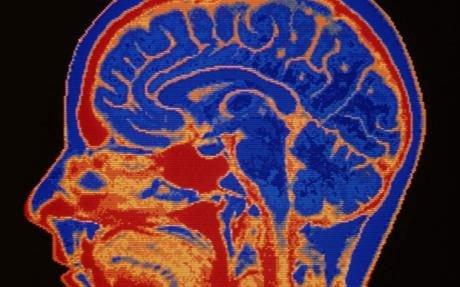 Những điều kinh ngạc về não người