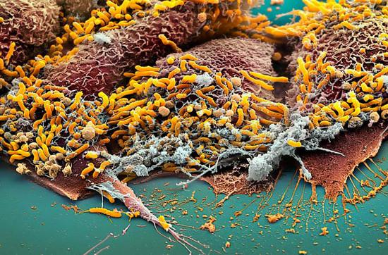 """Những hình dạng vi khuẩn """"độc, lạ"""" nhất hành tinh"""