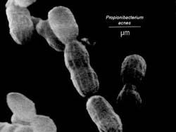 Phát hiện vi khuẩn gây ra các bệnh nhiễm trùng