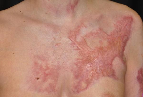 Phương pháp mới điều trị bỏng không để lại sẹo