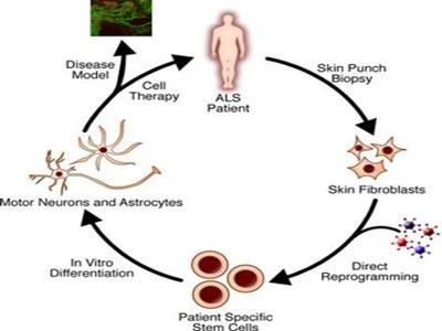 Tạo tế bào mầm để trị 10 chứng rối loạn khó chữa