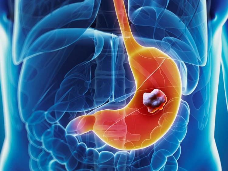 Thực phẩm bẩn có thể gây ra bệnh ung thư nào?
