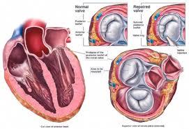 Thuốc Beta blockers làm giảm nguy cơ tử vong bệnh nhân tim mạch sau phẫu thuật