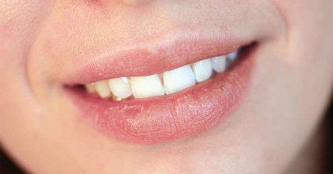 Trị môi nứt nẻ