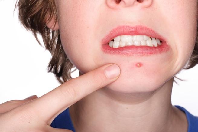 Triệu chứng 5 bệnh ngoài da thường gặp vào mùa hè