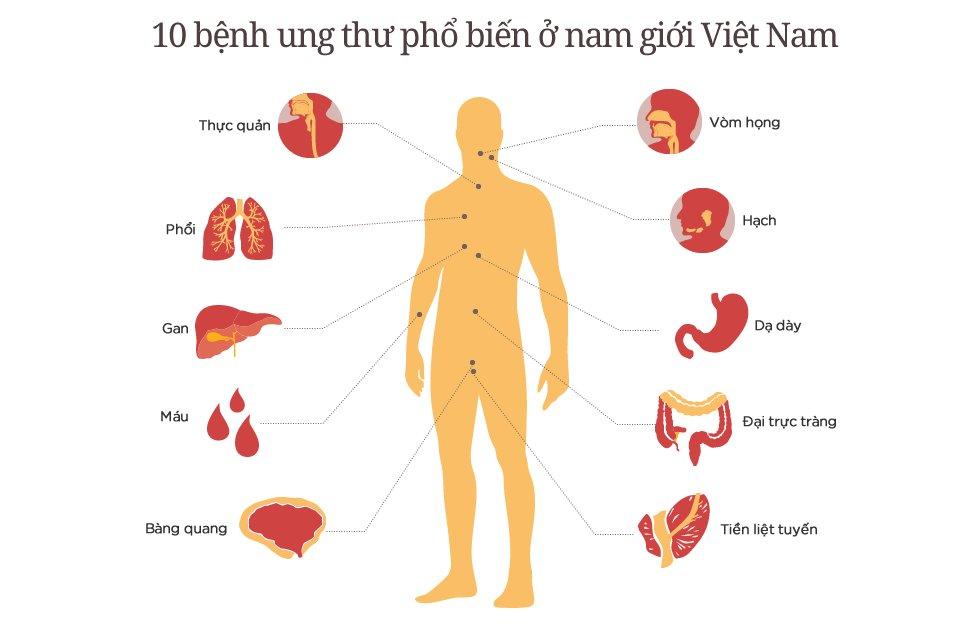 Tỷ lệ đàn ông Việt Nam chết vì ung thư thuộc loại cao nhất thế giới