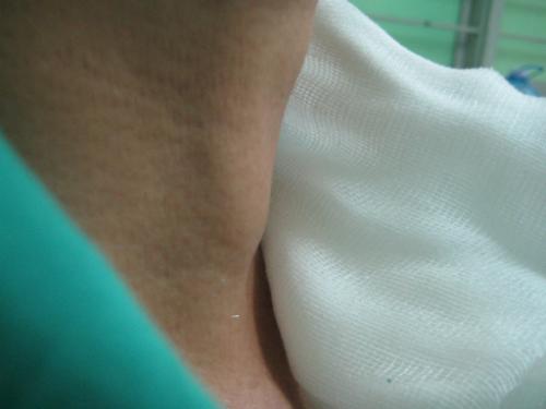 Ung thư tuyến giáp: Cách phát hiện và điều trị