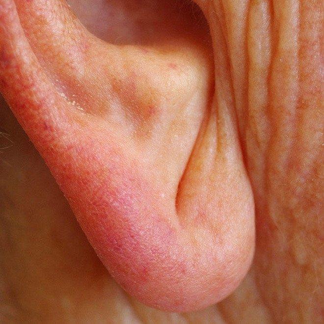Vết lằn chéo ở dái tai cảnh báo bệnh tim mạch