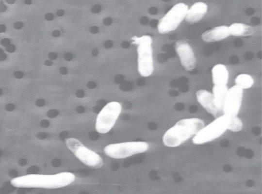 Vi khuẩn có thể sống trong môi trường thạch tín