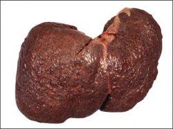 Xác định chính xác dấu hiệu của bệnh ung thư gan