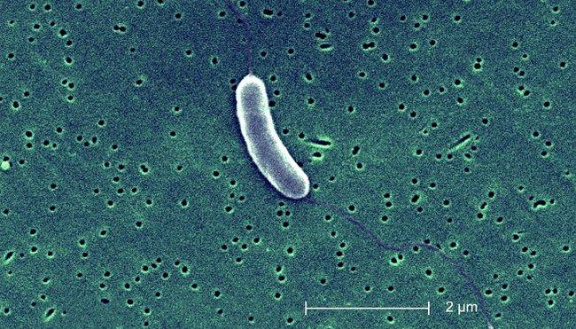 Biến đổi khí hậu và sự sinh sôi của vi khuẩn ăn thịt người