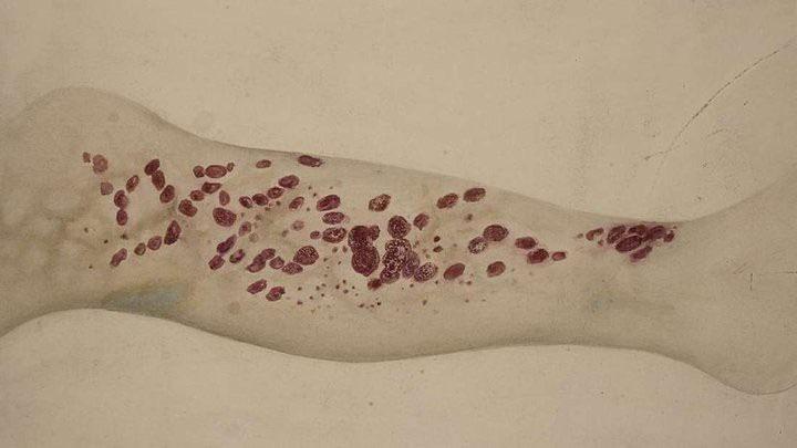 Căn bệnh bí ẩn từng giết hàng loạt hải tặc vào thế kỷ 18 đang dần xuất hiện