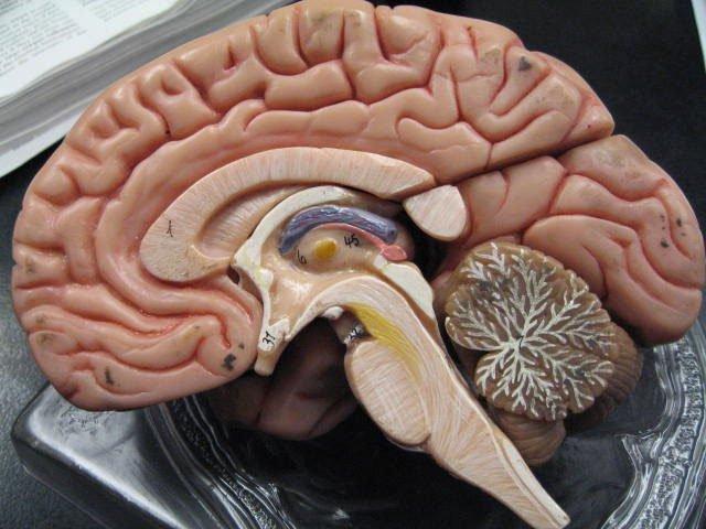 Cậu bé bị cắt mất 1/6 não bộ, sau 3 năm vẫn sống bình thường mà không hay biết gì