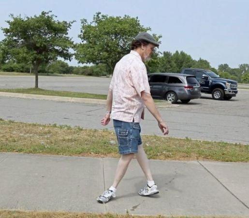 Choáng với người đàn ông bẻ ngoặt chân 180 độ vẫn đi lại được bình thường