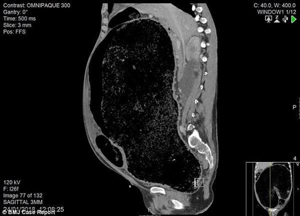 Đau bụng, tiêu chảy 1 tuần, người đàn ông suýt mất mạng vì đại tràng quá tải chất thải