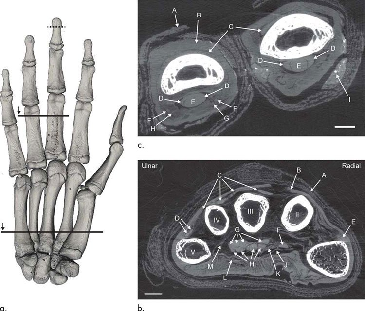 Kỹ thuật chụp ảnh hé lộ từng mạch máu bên trong xác ướp