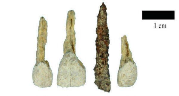 Người cổ đại trồng răng nâng mũi như thế nào?