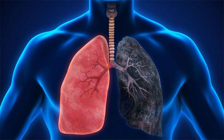 Tại sao ung thư phổi nguy hiểm?