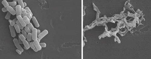 Tia plasma lạnh hỗ trợ làm lành vết thương hở như thế nào?