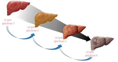Xơ gan có mấy giai đoạn? Xơ gan cấp độ f1, f2, f3, f4 là gì?