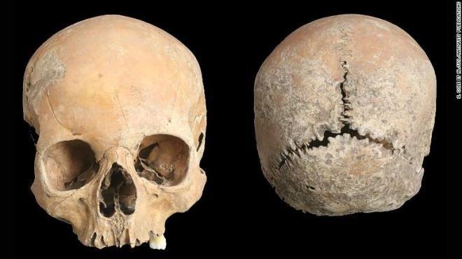 Ám ảnh hộp sọ thiếu nữ cổ đại bị cắt mũi, cắt môi, gọt da đầu