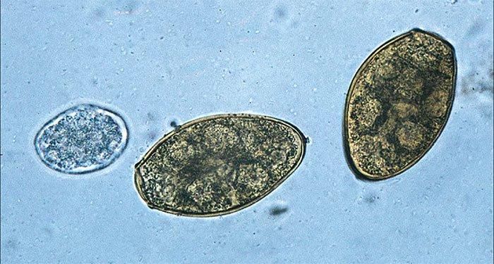 Ăn sống tôm hùm đất có nguy cơ nhiễm sán lá phổi