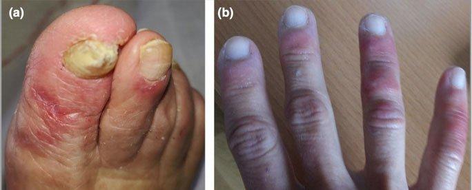 Bác sĩ chỉ 5 dấu hiệu điển hình trên da của người mắc Covid-19