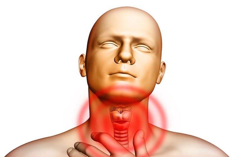 Bệnh cường giáp - Nguyên nhân, triệu chứng và cách điều trị