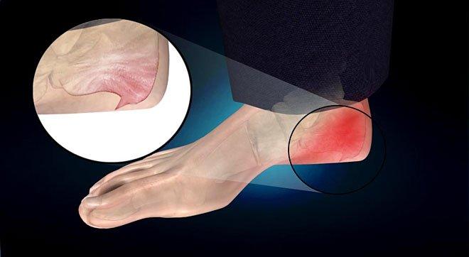 Bệnh gai xương gót là gì?