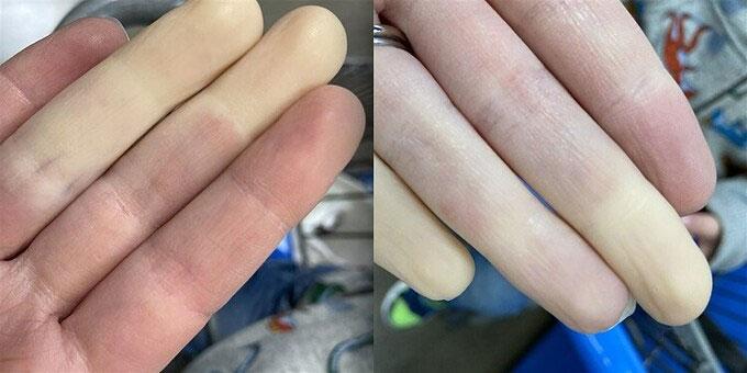 Bệnh mùa lạnh khiến ngón tay trắng bệch một cách kỳ lạ
