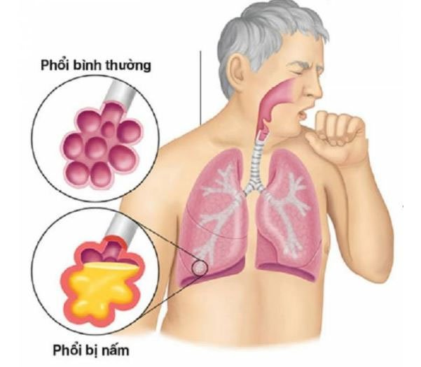 Bệnh nấm phổi là gì?