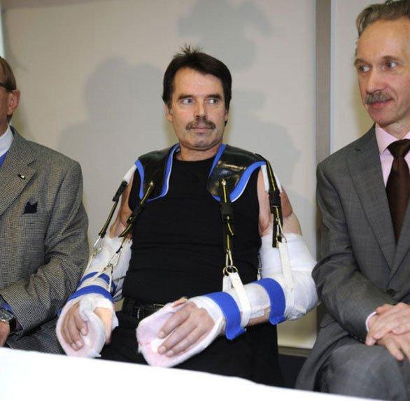 Bệnh nhân đầu tiên trên thế giới được ghép hai cánh tay và hai vai